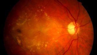 Wet Macular Degeneration