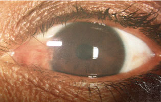Pterygium (Before surgery)